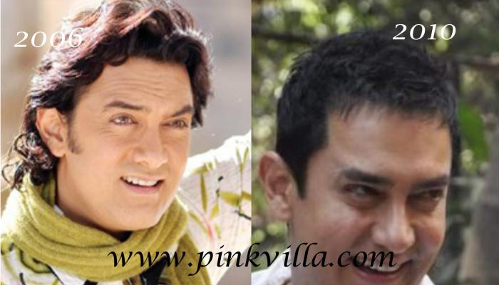 News,plastic surgery,aamir khan