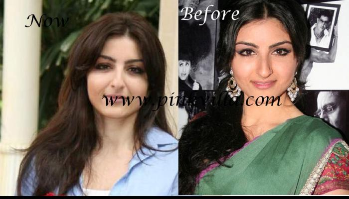 Photos,plastic surgery,Soha Ali Khan