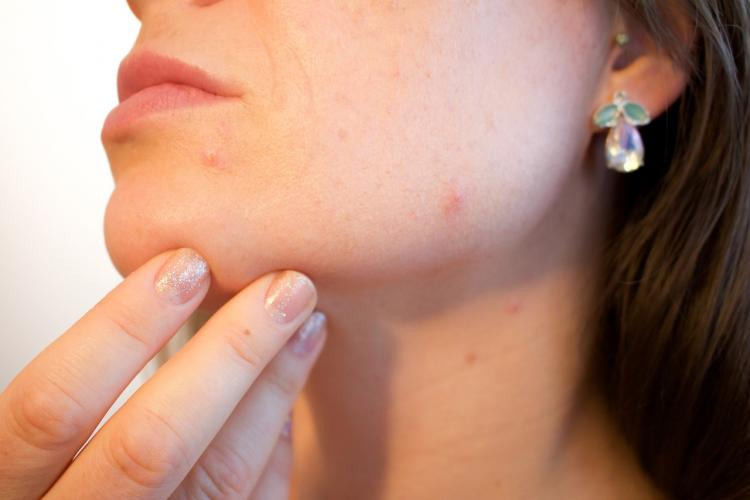 Do you get acne and pimples during your periods? Dr Jaishree Sharad explains hormonal change & breakouts