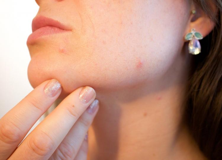Home Remedies For Mosquito Bites: THESE natural ingredients can provide relief from this problem