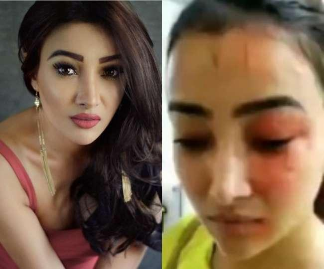 EXCLUSIVE: Naamkarann fame Nalini recounts the physical assault by her roommate, says 'lost appetite for days'EXCLUSIVE: Naamkarann fame Nalini recounts the physical assault by her roommate, says 'lost appetite for days'