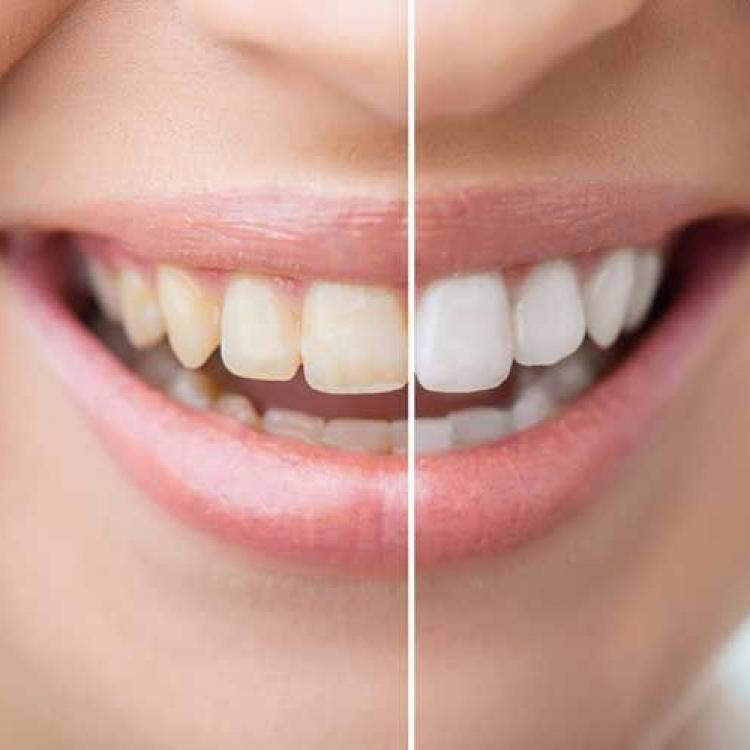 5 home remedies to naturally keep your teeth white