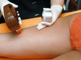 Beauty,skincare,hair removal,side effects