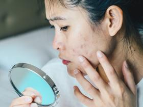 skin care,Health & Fitness,Stress Affects Skin